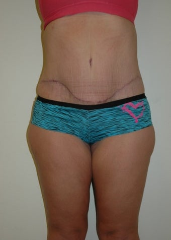 Body Lift/Tummy Tuck after 640860