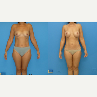 45-54 year old woman treated with Mommy Makeover before 3564418
