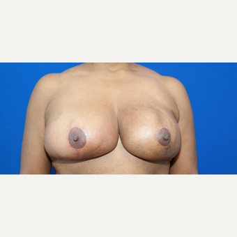 45-54 year old woman treated with Breast Reduction after 3104180