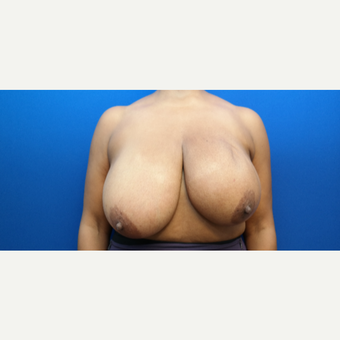45-54 year old woman treated with Breast Reduction before 3104180