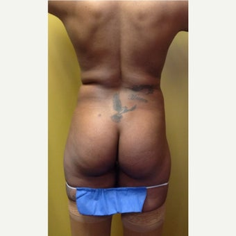 45-54 year old woman treated with Butt Augmentation before 1974113