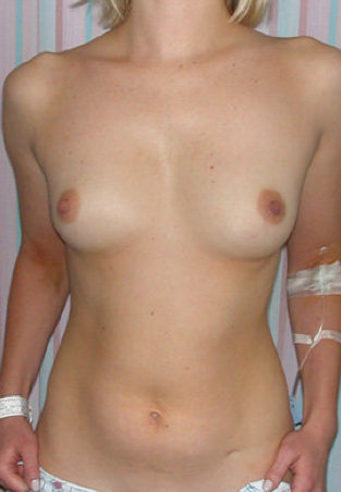 Breast Augmentation before 459523