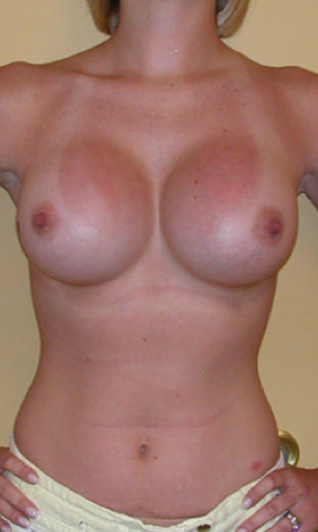 Breast Augmentation after 459523