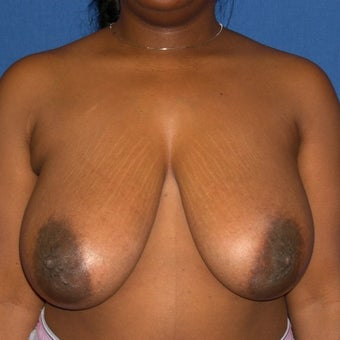 35-44 year old woman treated with Breast Reduction before 1645288