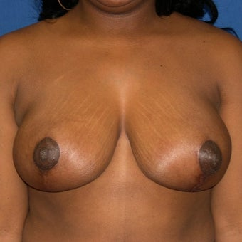 35-44 year old woman treated with Breast Reduction after 1645288