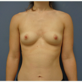 25-34 year old woman treated with Breast Augmentation before 3747002