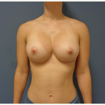 25-34 year old woman treated with Breast Augmentation after 3747002