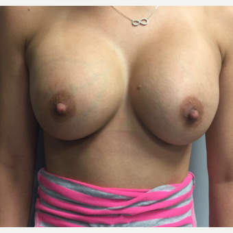18-24 year old woman treated with Breast Augmentation after 3400623