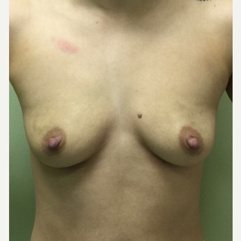 18-24 year old woman treated with Breast Augmentation before 3400623