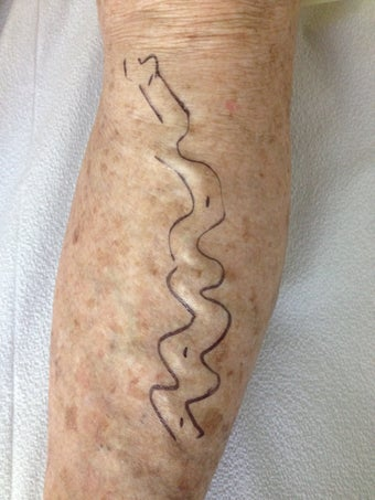 Vein Treatment Before and After on the Legs