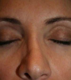 Non-Surgical Nose Job  before 1350143