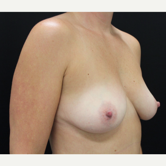 35-44 year old woman treated with Breast Augmentation before 3665427