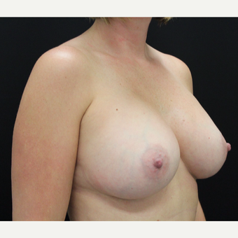 35-44 year old woman treated with Breast Augmentation after 3665427