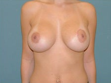 Left crescent lift with breast implants after 1125266
