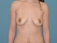 Left crescent lift with breast implants before 1125266