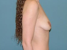 Left crescent lift with breast implants 1125266