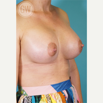 25-34 year old woman treated with Breast Implants after 3468708