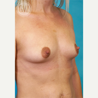 25-34 year old woman treated with Breast Implants before 3468708