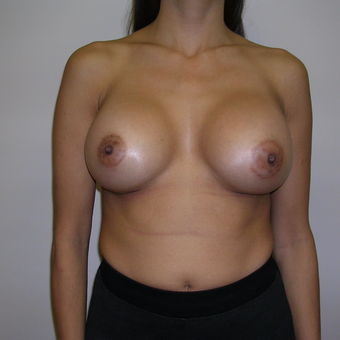 25-34 year old woman treated with Breast Augmentation after 3547901