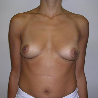 25-34 year old woman treated with Breast Augmentation before 3547901