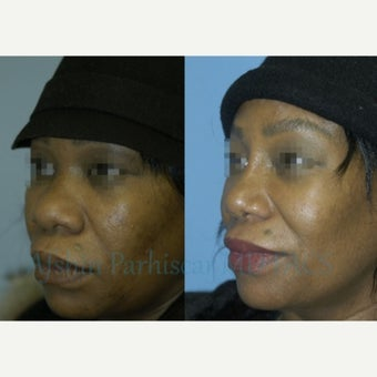 45-54 year old woman treated with Rhinoplasty after 1754845