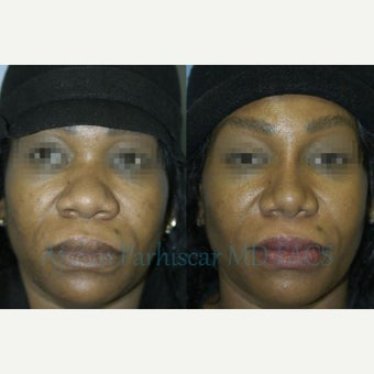 45-54 year old woman treated with Rhinoplasty before 1754845
