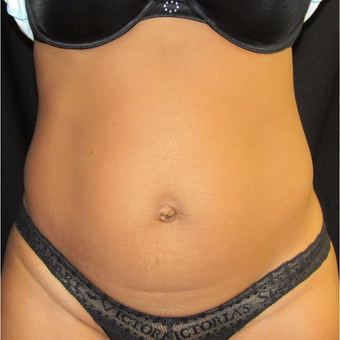 41 yr old woman treated with CoolSculpting on the abdomen and flanks. after 3174327