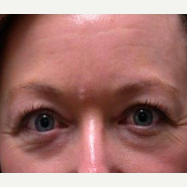 Woman treated with Eyelid Surgery before 1585481