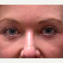 Woman treated with Eyelid Surgery after 1585481