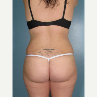 35-44 year old woman treated with Smart Lipo after 3237043