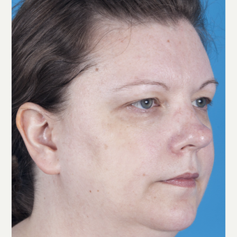 35-44 year old woman treated with Rhinoplasty before 3159535
