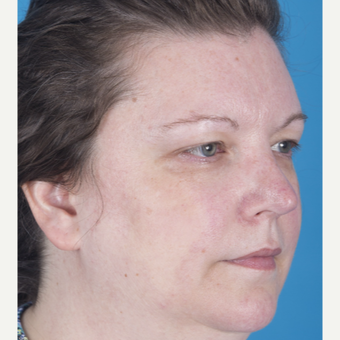 35-44 year old woman treated with Rhinoplasty after 3159535