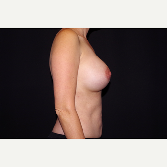 35-44 year old woman treated with Breast Implant Revision after 2998891