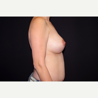35-44 year old woman treated with Breast Implant Revision before 2998891