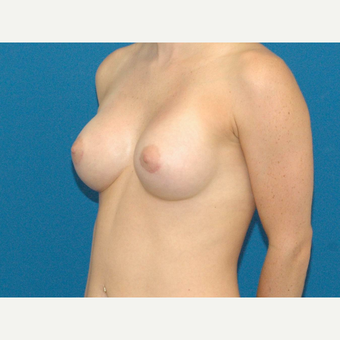 24 year old woman treated with Breast Augmentation after 3267116