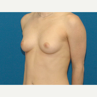 24 year old woman treated with Breast Augmentation before 3267116