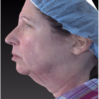 55-64 year old woman treated with Neck Lift before 3266939