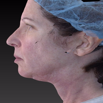 55-64 year old woman treated with Neck Lift after 3266939