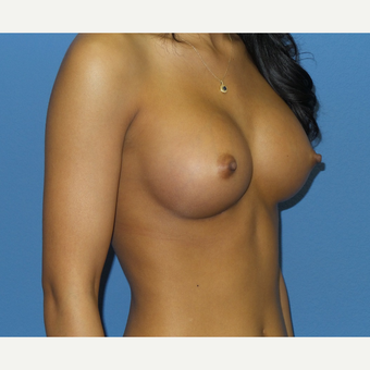 18-24 year old woman treated with Breast Augmentation after 3085325