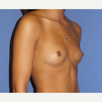 18-24 year old woman treated with Breast Augmentation before 3085325