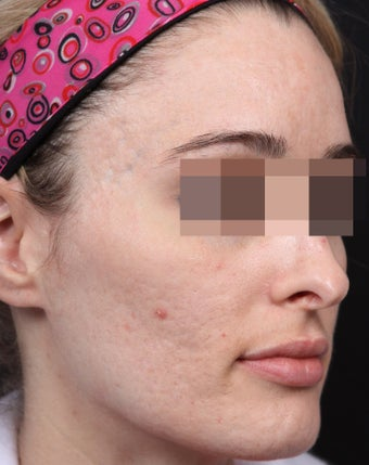 Fraxel Restore for Indented Acne Scarring after 1350673