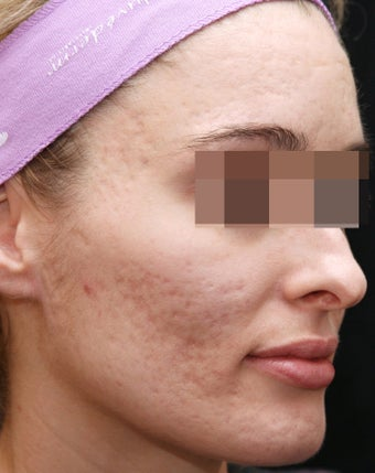 Fraxel Restore for Indented Acne Scarring before 1350673