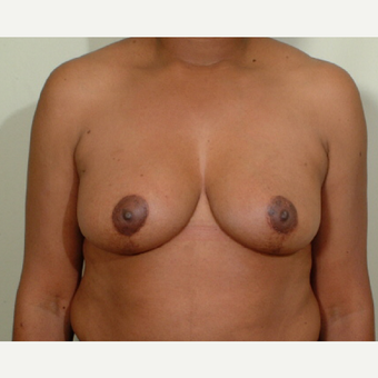 45-54 year old woman treated with Breast Reduction after 3446727