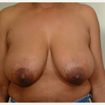 45-54 year old woman treated with Breast Reduction before 3446727