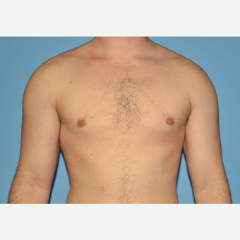 Bilateral Gynecomastia Correction after 2969868