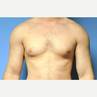 Bilateral Gynecomastia Correction before 2969868