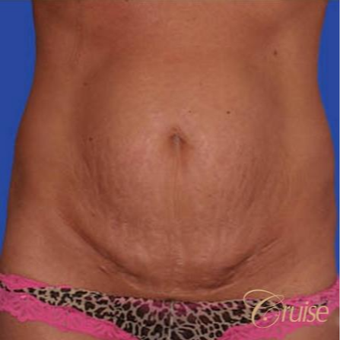 43 year old woman treated with a Standard Tummy Tuck before 3584926