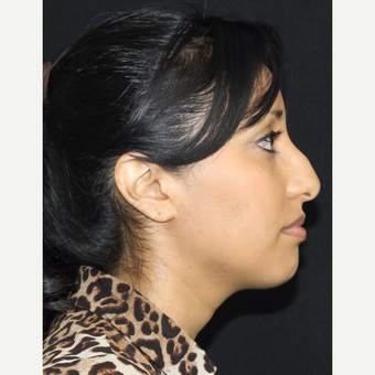 25-34 year old woman treated with Rhinoplasty before 3673861