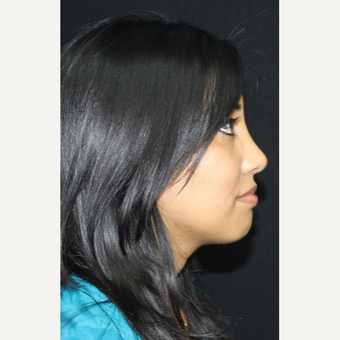25-34 year old woman treated with Rhinoplasty after 3673861