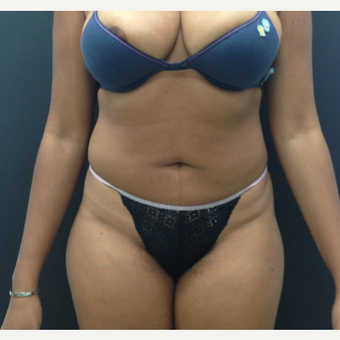 25-34 year old woman treated with Liposuction after 3225717